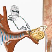 Esteem and Cochlear Hearing Implant Carlsbad, Murrieta, La Jolla